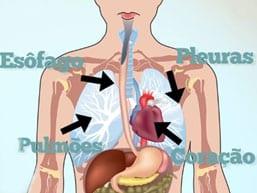 Resumidamente, se tem o esôfago, que comunica o estomago até a garganta, os pulmões, as pleuras que recobrem os pulmões, e o coração. Para fora do tórax tem-se os músculos, as articulações, e os ligamentos. Tudo isso pode causar dor. Além disso, existem as glândulas mamárias, que na mulheres pode também ser uma importante causa de dor.
