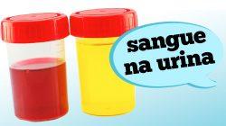 Sangue na Urina ou Hematúria