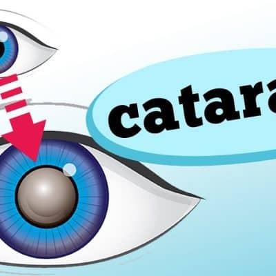 Você suspeita que está com catarata? Mas afinal, o que é a doença e quais seus sintomas? É o que a oftalmologista Flavia Luz discute no vídeo de hoje.