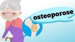 O QUE É OSTEOPOROSE? QUAIS OS SINTOMAS?
