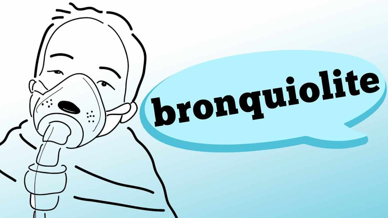 Você sabe o que é bronquiolite e como ela pode afetar seus filhos? Confira no vídeo de hoje quais são os sintomas, fatores de risco e o que deve ser evitado, com as informações do pediatra Julio C. C. L. Filho.