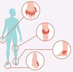 A gota manifesta-se como ataques de dor, inchaço e vermelhidão numa articulação.