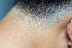 A micose de cabelo, chamada de tinea capitis, é um problema quase exclusivo de crianças. Deve-se suspeitar desse problema quando no couro cabeludo aparecerem uma ou mais regiões com coceira, descamação e queda dos fios de cabelo. Além disso, nos casos mais graves, pode haver presença de feridas, crostas e até pus.