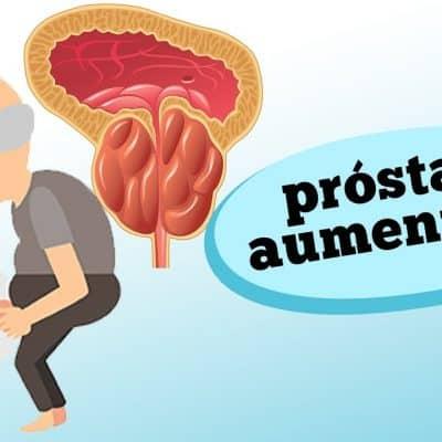 Força para urinar? Urinou mas ainda sente vontade de urinar? Se você é homem e possui estes sintomas, você pode estar com HPB (HIPERPLASIA PROSTÁTICA BENIGNA), ou, próstata aumentada. Confira hoje todas as características deste problema com as informações do urologista Fabio Ortega.