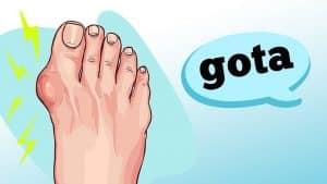 A gota é caracterizada por poderosas dores nas articulações. Saiba mais sobre as causas e sintomas dessa condição com as informações do reumatologista Ricardo Fuller.
