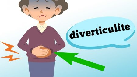 O que é DIVERTICULITE e quais os sintomas?