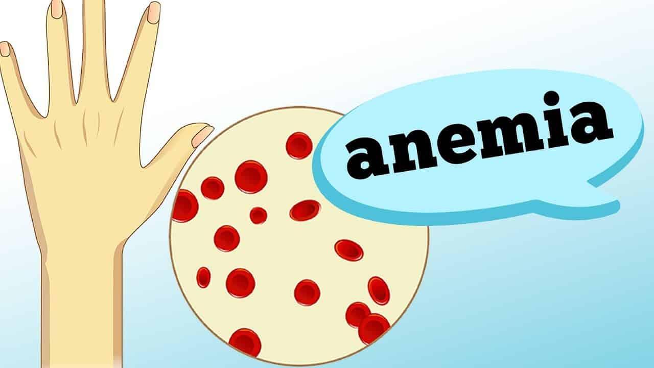 Fraqueza, sonolência, pele pálida... Diversos são os sintomas da anemia, que pode ser causada por muitos motivos diferentes. Saiba todas as informações no vídeo de hoje com o hematologista Antonio A. G. S. Brandão.