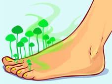 Micose é o termo genérico para as infecções causadas por fungos. As micoses são mais comuns em países tropicais e no verão, pois o calor, o suor e a umidade favorecem a multiplicação dos fungos.