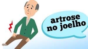 Dependendo das características, a dor no seu joelho pode ser artrose. Descubra no vídeo de hoje todos os sintomas e possíveis causas para identificar melhor este tipo de doença degenerativa, com as informações do ortopedista Rodrigo Abdo.