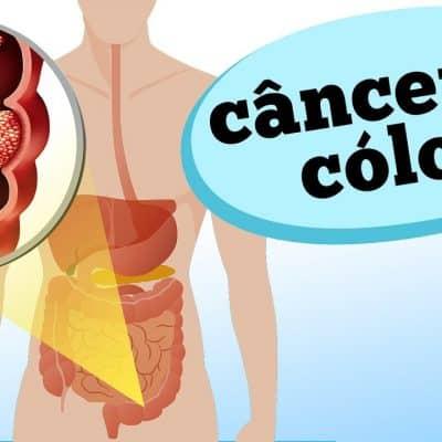 Como reconhecer e prevenir o câncer de cólon, também conhecido como câncer do intestino grosso? No vídeo de hoje, o cirurgião do aparelho digestivo Arceu Scanavini discute as características dessa doença silenciosa, responsável por um dos tumores mais frequentes do corpo humano.